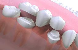 Dental bridges Twickenham
