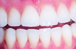 Teeth whitening, Twickenham